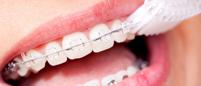 Igiena cu aparat ortodontic