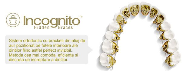 Sistemul Incognito detalii Ortho Shop
