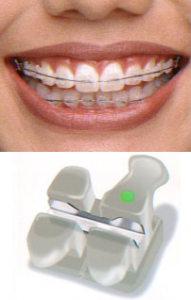 Bracketi Clarity de la Ortho Shop