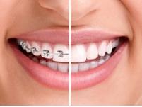 inainte si dupa aparat dentar
